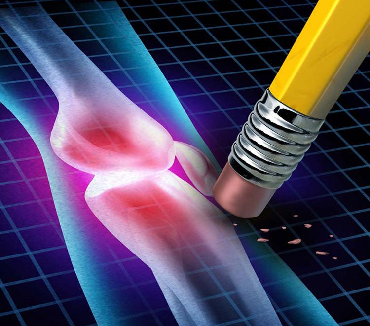 ترکیبی مفید برای درمان آرتروز