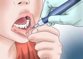 باشگاه خبرنگاران -زخمهای دهانی عارضه اصلی ابتلا به سرطانهای سر و گردن