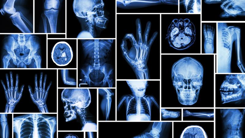 خطرات کاهش غیر عادلانه تعرفه های رادیولوژی/ مراکز رادیولوژی در آستانه ورشکستگی