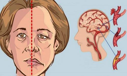 7 عامل خطر سکته مغزی در خانمها,