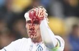 باشگاه خبرنگاران -صورت خونی بازیکن دیناموکیف در لیگ اروپا+عکس
