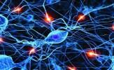 باشگاه خبرنگاران -6 قاتل سلول های عصبی رابشناسید