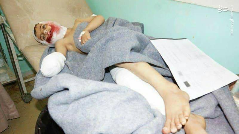 کودکانی که سعودیها اعضای بدنشان را قطع کردند+عکس