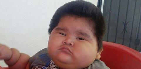 چاق ترین کودک ۱۰ ماهه جهان با ۳۰ کیلوگرم وزن+ تصاویر