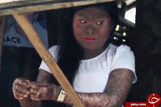 بیماری وحشتناکی که پوست این دختر را شبیه به مار می کند + تصاویر