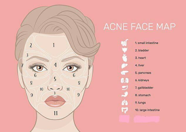 کشفی جدید در دنیای پزشکی پوست و مو؛ بیماریهای پنهان که صورتتان را پراز جوش میکنند
