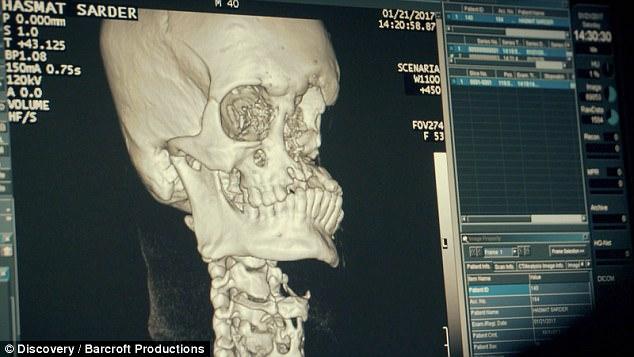 1-جراحی ترمیمی برای نجات مردی که ببر به صورت او حمله کرده است+ تصاویر2-تلاش جراحان بنگلادشی برای نجات مردی که ببر صورت او را نابود کرده است+ تصاویر