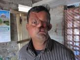 باشگاه خبرنگاران -تلاش جراحان برای نجات مردی که ببر صورت او را نابود کرده است + تصاویر