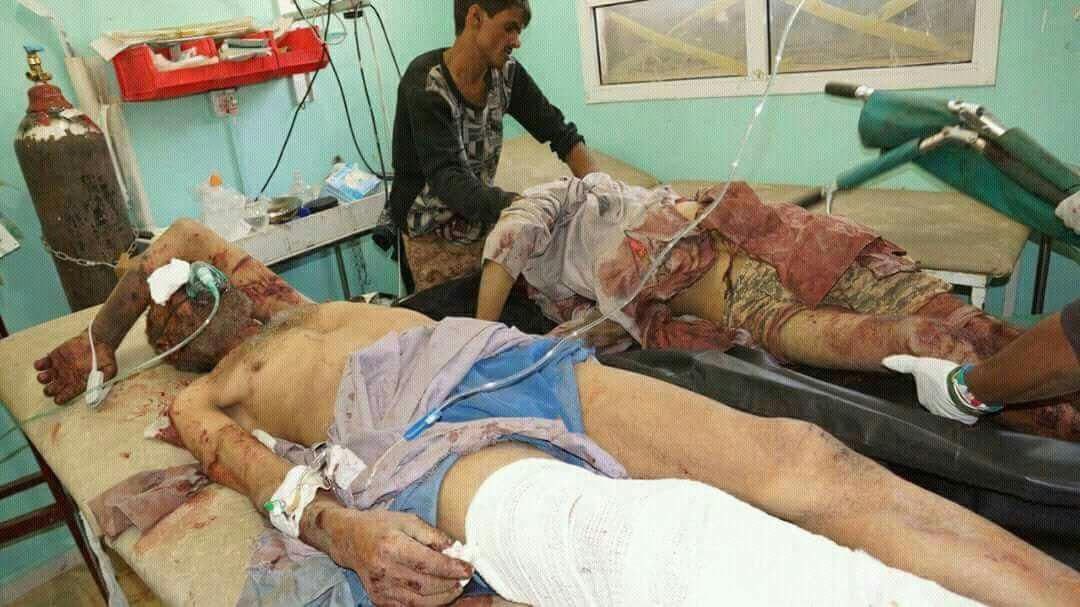 تصاویر هولناک از جنایات امروز جنگنده های سعودی علیه مردم بی دفاع صعده 18+