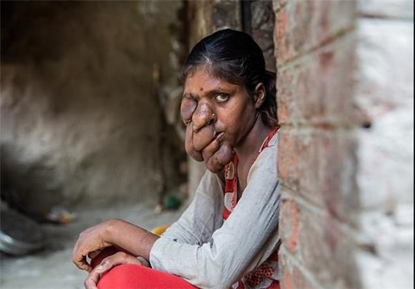 بیماری عجیب دختر جوان هندی+عکس