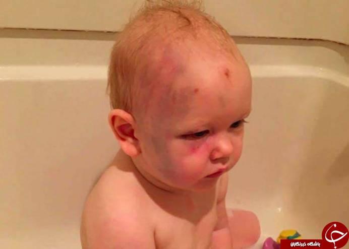 تصویری تکان دهنده از یک نوزاد شبکه های اجتماعی را به آتش کشید!