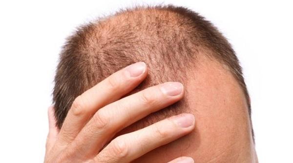 بهترین داروهای خانگی ضدریزش و تحریک رشد مجدد مو+ طرز تهیه