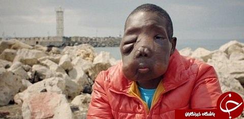 تومور عجیب در صورت پسر 11 ساله