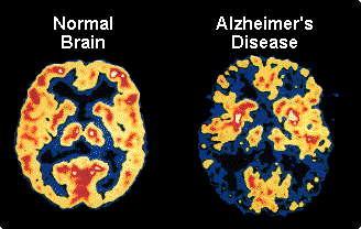 1-خطرناکترین خوراکیها که ذهن را مبتلا به بیماری خاموشی میکند 2-این خوراکیها مغز را خاموش میکند3-خوراکیهایی خوشمزه با بی نهایت خطرناک برای مغز4-این خوراکیها ذهن زیبایتان را پیر میکنند