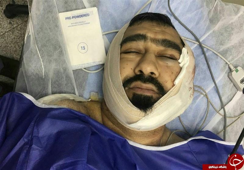 حمله خونین یکی از اوباش منطقه شرق تهران به یک طلبه + تصاویر