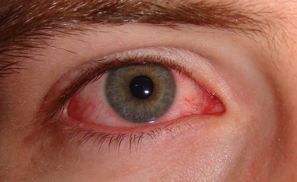 1-خطری مرگبار در کمین استفاده کنندگان از تستهای رایگان لوازم آرایش2-از تستهای رایگان لوازم آرایش به این دلایل هرگز استفاده نکنید3-تستهای رایگان آرایشی؛ محیطی سرشاراز میکروب و باکتریهای مرگبار