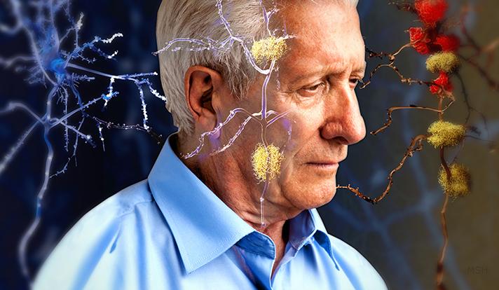 1-بیماری فراموشی مغزبه سراغ متاهلها نمیرود2-خطرناکترین بیماری مغزی به سراغ متاهلها نمیرود
