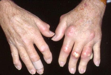 1-رژیم غذایی فوق العاده برای درمان مبتلایان به آرتریت روماتوئید2-رژیم غذایی فوق العاده موثر برای درمان آرتروز فلج کننده مفصلهای بدن