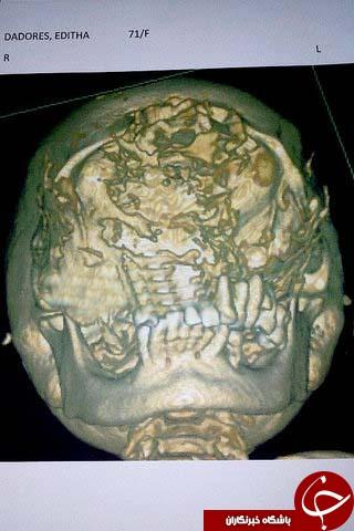 توموری که پیرزن ۷۱ ساله را شبیه مورچهخوار کرد +تصاویر