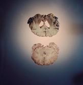 باشگاه خبرنگاران -تأثیر آلزایمر روی مغز چگونه است؟ +عکس