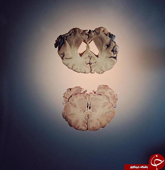 تأثیر آلزایمر روی مغز چگونه است؟ +عکس