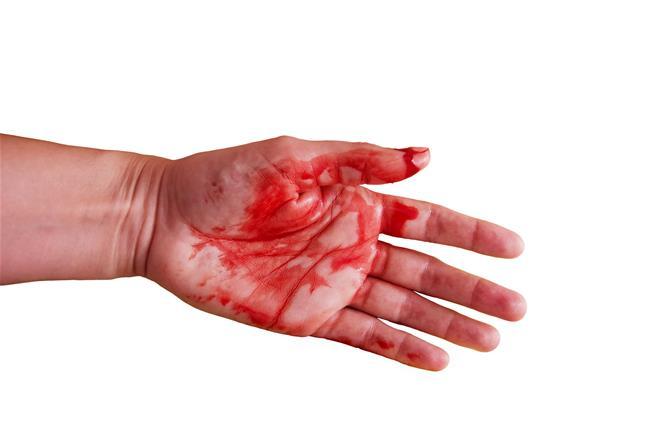روش های خانگی برای توقف خونریزی