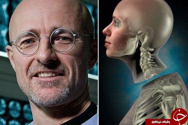 نخستین پیوند سر انسان روی یک جسد انجام شد