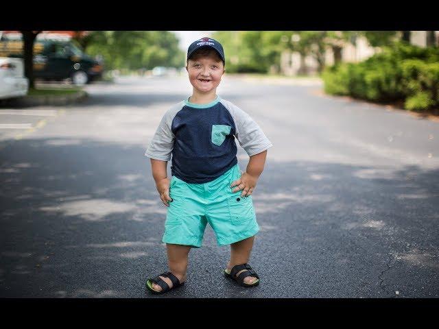 بیماری نادر پسربچه ۱۱ ساله ۹۰ سانتیمتری+تصاویر