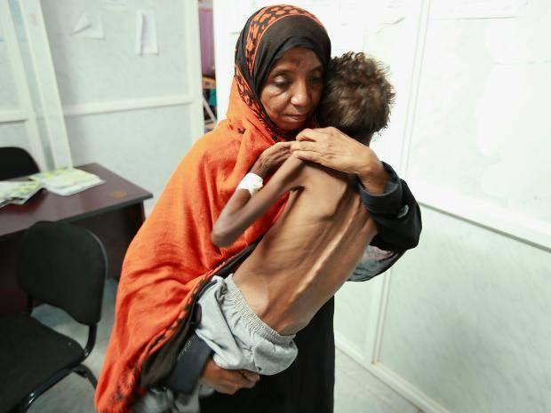هشدار جهانی درباره بحران انسانی در یمن