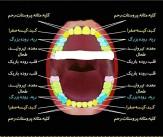 باشگاه خبرنگاران -راز پوسیدگی دندانها در چیست؟ +عکس