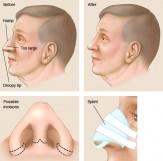 ۴۰ درصد از شکایتهای جراحیهای زیبایی مربوط به بینی است/ ورود افراد غیرمتخصص در حوزه خدمات زیبایی