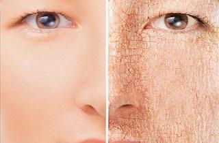 آشنایی با روش های درمان خشکی پوست