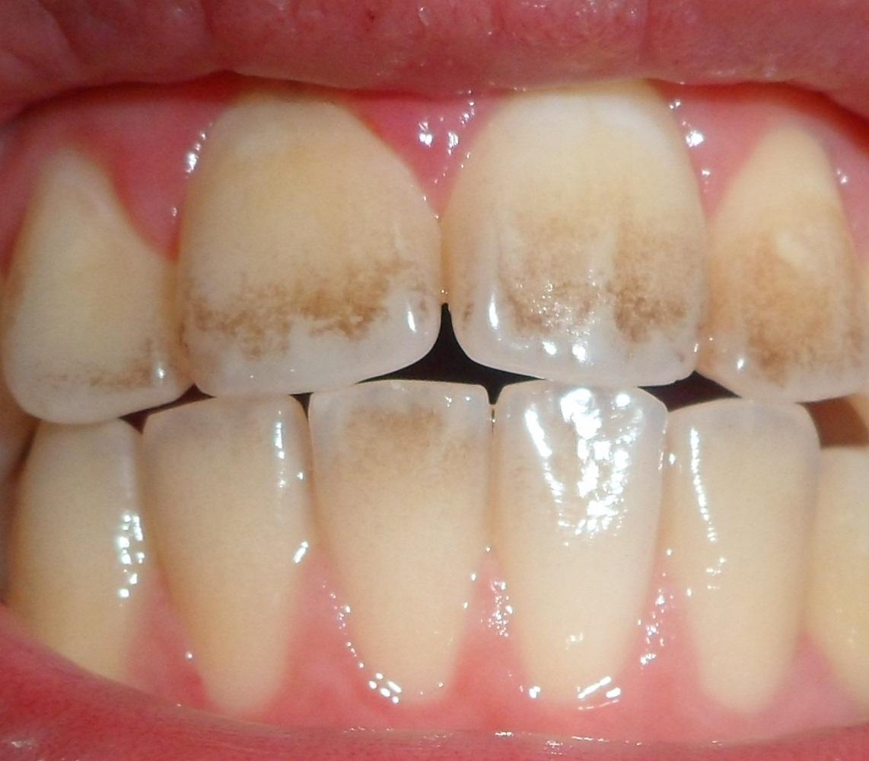 هر آنچه باید برای پیشگیری از پوسیدگی دندان بدانید