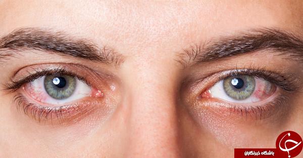 عواملی که باعث خشکی چشم میشوند