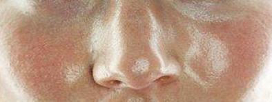 هرآنچه باید درباره پوست چرب بدانیم