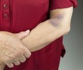 باشگاه خبرنگاران -۵ دلیل برای کبودی دائمی پوست