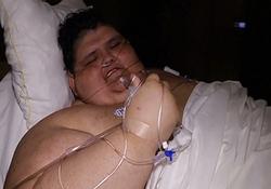 جراحی مرد 590 کیلوگرمی برای کاهش وزن + فیلم