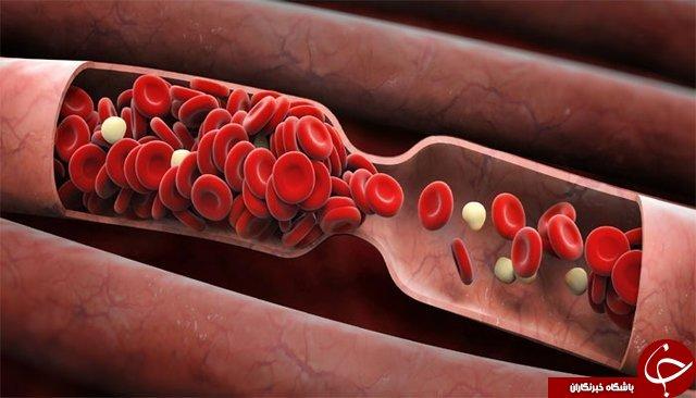 خبرهای خوب و بدی که گروههای خونی به همراه دارند
