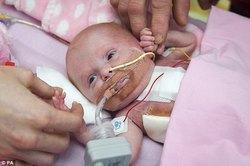 نجات معجزهآسای کودکی که قلبش خارج از سینهاش رشد کرده بود+ تصاویر