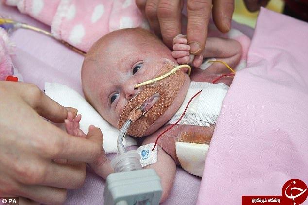 کودکی که قلبش خارج از سینهاش رشد کرده بود علیرغم انتظار پزشکان، زنده ماند+ تصاویر