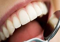 روشهای ساده خانگی برای سفید کردن دندانها