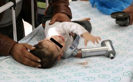 چرخ گوشت دست کودک ۱۹ ماهه را بلعید+تصاویر