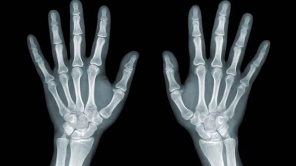کشف آنتیبادی برای مقابله با متاستاز استخوان
