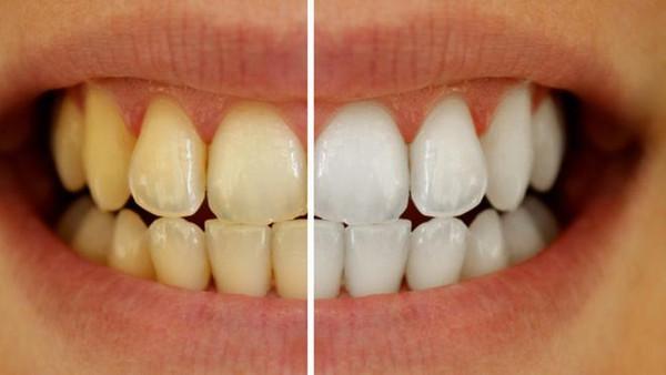 راهکاری طلایی برای سفید شدن دندانها