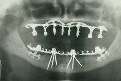 نقش کلیدی آسیب شناسی دهان در تحقیقات دندانپزشكى/ شناخت علل ایجاد ضایعات دهانى با استفاده از پاتولوژی