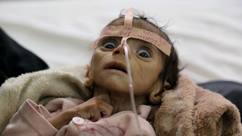 سازمان ملل: یمن بدترین نقطه جهان برای یک کودک است