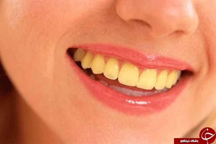 چند راه حل ساده برای رفع بوی بد دهان و زردی دندان