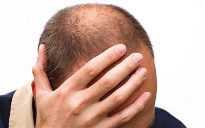 مواد معدنی مفید و سالم برای زیبایی و رشد موها