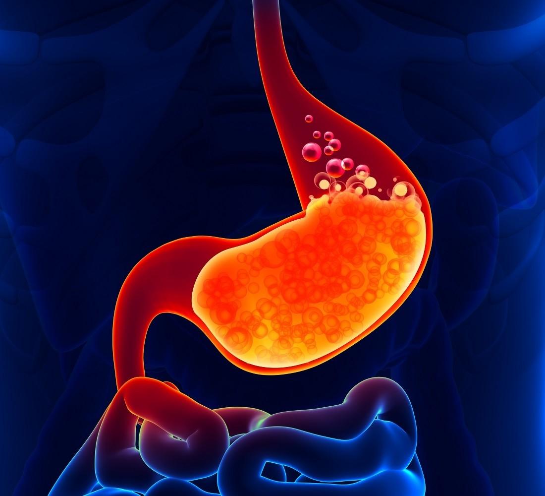 افزایش خطر ابتلا به سرطان معده با مصرف داروهای درمان ریفلاکس
