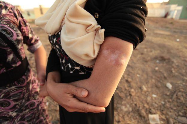 'برای آزادی خانوادهام از دست داعش ۹۰ هزار دلار دادم'